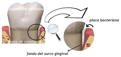 gingivitis encías inflamación